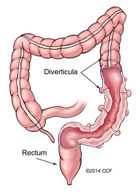 Diverticulosis is part of diverticular disease